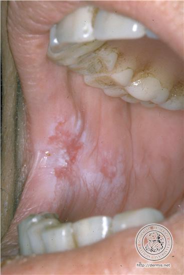 Leucoplasie (dermis)
