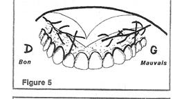 La vascularisation et l'innervation se font de distal en mésial.