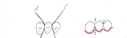 Passage du fil de soie, de haut en bas en arrodissant sur la paroi de la dent.