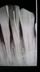 Fausse rote avec perforation sur une incisive inférieure très calcifiée. (eugenol.com)