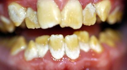 Amélogénèse imparfaite de la deuxième dentition (universitederennes1).