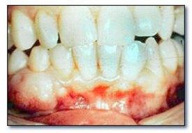 Fibrome périphérique ossifiant (dentalcare.co.uk).