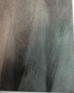 Fin du traitement endodontique en 2005