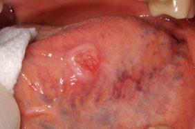 Erythroplsie de la langue