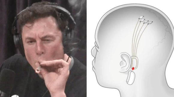 Elon Musk says people will eventually consume music through implanted brain chip
