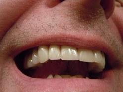 Sognare denti: cosa significa? Interpretazione e numeri della smorfia