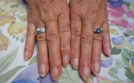 Macchie bianche sulle unghie: cosa sono e come curarle