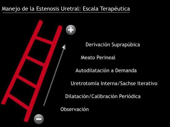 Escalera Terapéutica en el Manejo de la Estenosis Uretral