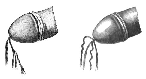 Chorros bifurcados en estenosis de uretra (Jozan, 1862)