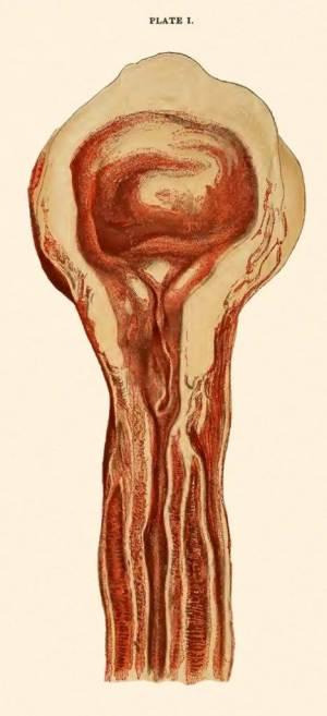 Estenosis uretral bulbar (Lydston, 1893)