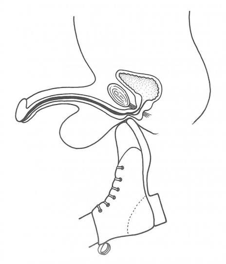 Traumatismo de uretra perineal (Blandy, 1976)