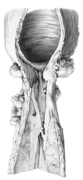 Estenosis de uretra bulbar y falsa vía (José Pró, 1856)