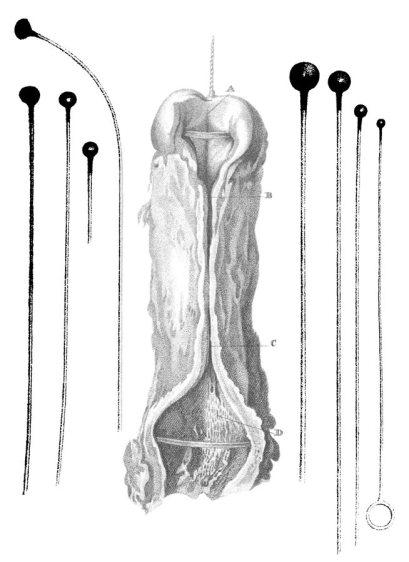 Estenosis uretral y sondas uretrales aplicadoras de cáustico alcalino (Bell, 1811)
