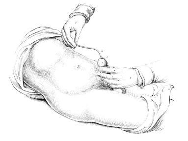 Dilatación uretral (Lizars, 1851)