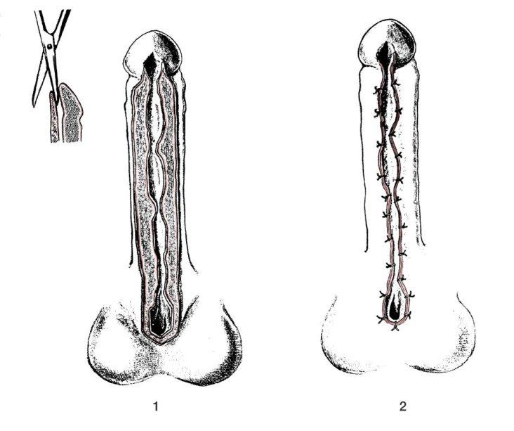 Uretroplastia Bengt Johanson 1erT (1953)