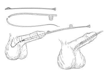 Uretrotomía con cuchillete de Maisonneuve (1855)