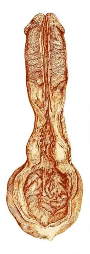 Diagrama de estenosis uretral en paciente de 19 años (Lydston, 1893)