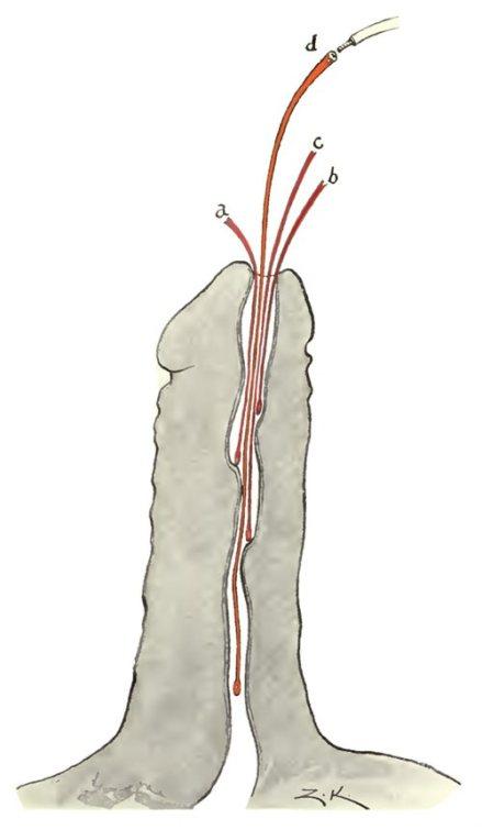 Dilatadores uretrales filiformes (Koll, 1918)