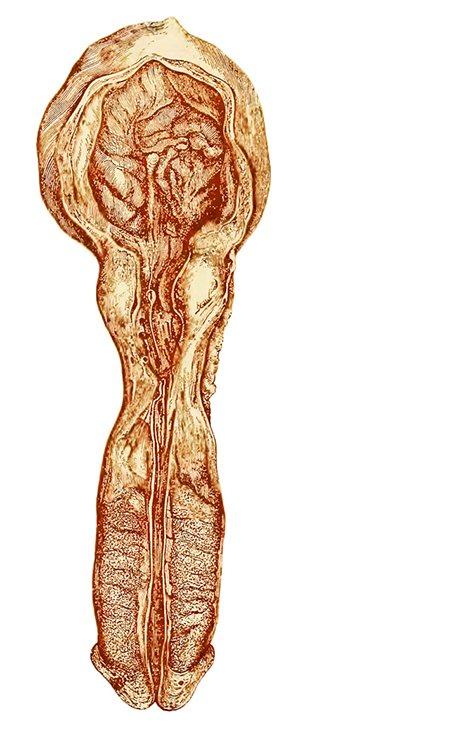 Resultado de intentar curar una estenosis de uretra con dilataciones (Lydston, 1893).