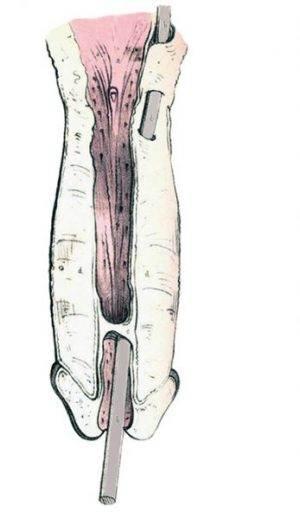 Falsa vía uretral causada por sondaje (Maclise, 1859)
