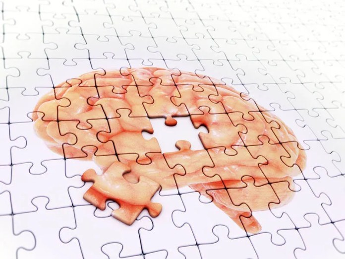 News Picture: Aphasia Affects Brain Similar to Alzheimer's, But Without Memory Loss