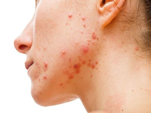 News Picture: Acne Can Take Big Emotional Toll on Women