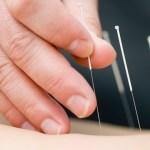 Pacientes con infertilidad buscan ayuda en la acupuntura