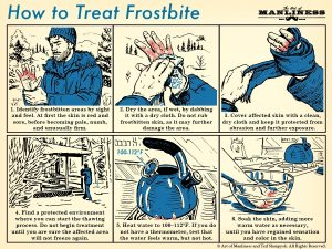 How to Treat Frostbite | The Art of Manliness
