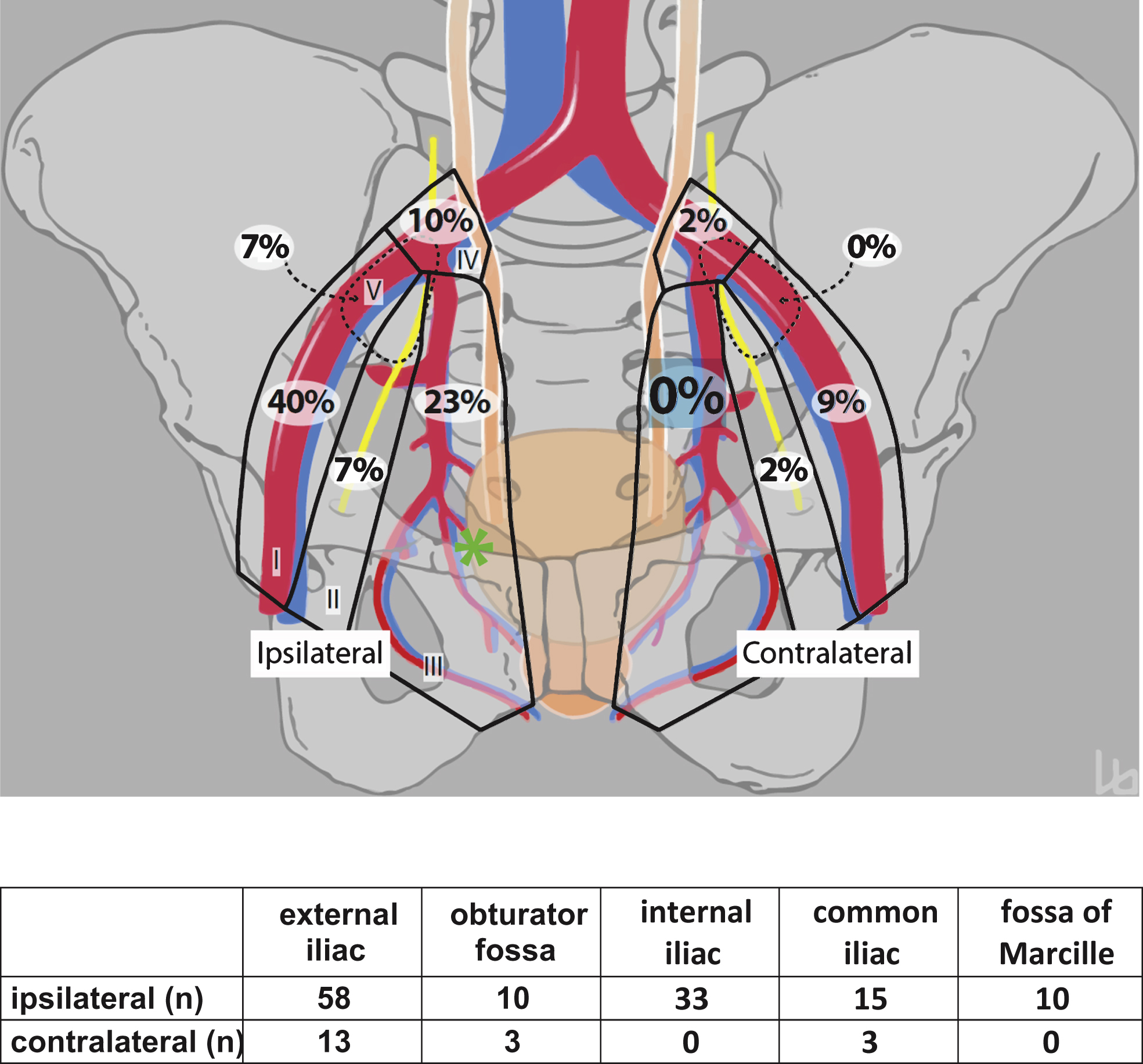 where are my lymph nodes diagram kia spectra radio wiring pelvic node dissection may be limited on the contralateral schematic showing distribution of metastases n 145