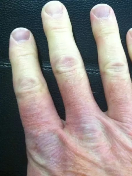 Unhas de um paciente com doença de Raynaud - WaltFletcher/Reprodução - WaltFletcher/Reprodução