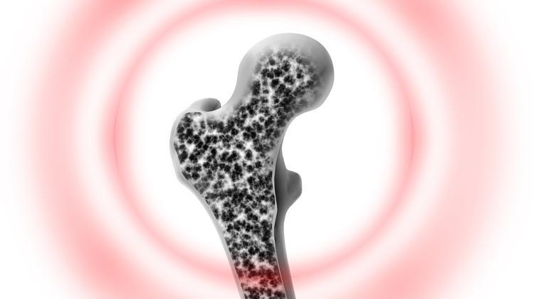 Osteoporosis, bone - iStock - iStock