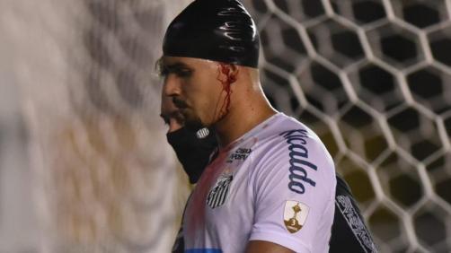 Lucas Veríssimo deixa o gramado após primeiro tempo contra o Boca Juniors  - Twitter Santos