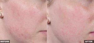 Fraxel Laser for Face