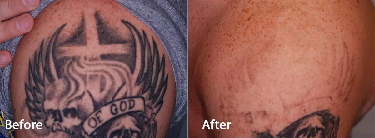 Pico Way Tattoo Removal Before and After Photo