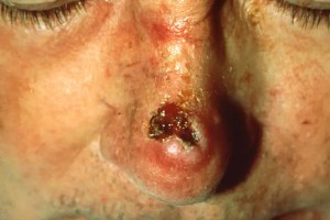 Squamous_Cell_Carcinoma