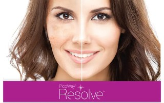 PicoWay Resolve The best solution for pigmented lesions