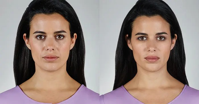Juvederm Vollure before and After photo