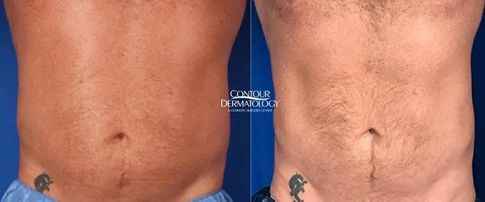 CoolSculpting - abdomen and flanks, 2 treatments