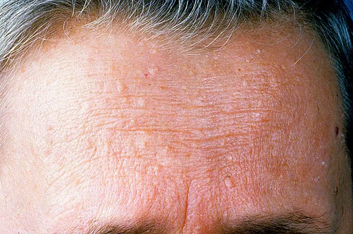 Avene Skin Care Products