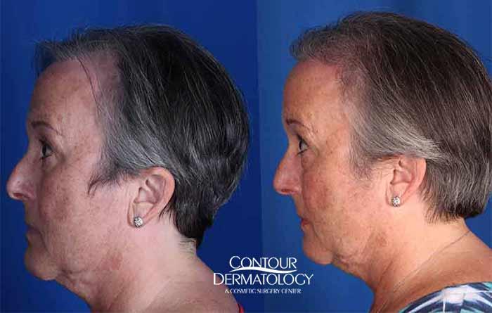 Hair Transplant - Female