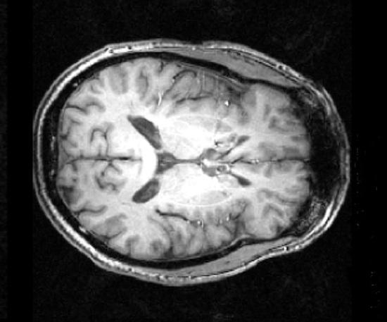 Parker's brain - section-2-550