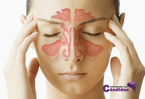 webmd_composite_image_of_sinuses
