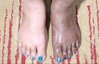 Feet Whitening Pedicure – Skin Whitening For Black Skin