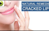 Cracked Lips – Natural Ayurvedic Home Remedies