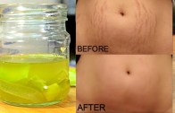 How To Remove Stretch Marks Permanently Works 100% – Cure Injury & Burn In 3 Days Miracle Oil