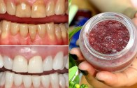 How To Whiten Your Dirty Yellowish Teeth Naturally – Teeth Whitening At Home