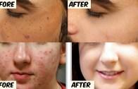 Remove spots on your face – पुराने से पुराने पिंपल व झाइयां के दाग और घाव के निशान हटाने के रामबाण नुस्खे