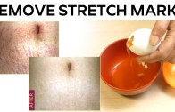 Simple Ways To Clear Stretch Marks At Home
