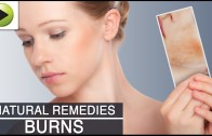 Skin Care – Burns – Natural Ayurvedic Home Remedies