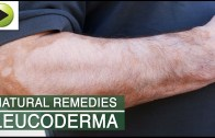 Skin Care – Leucoderma – Natural Ayurvedic Home Remedies